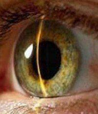 Глазное давление как лечить