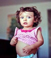 Цитомегаловирусная инфекция симптомы у детей