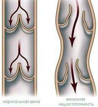 Венозная недостаточность нижних конечностей симптомы