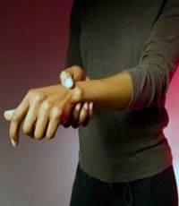 Почему немеют кисти рук